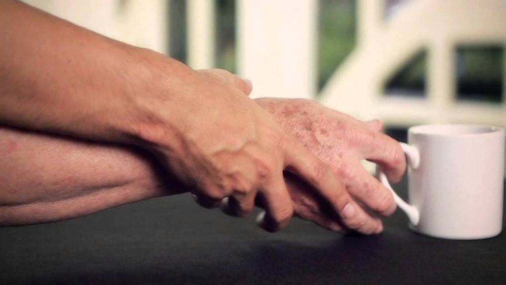 Parkinson, una enfermedad crónica y degenerativa