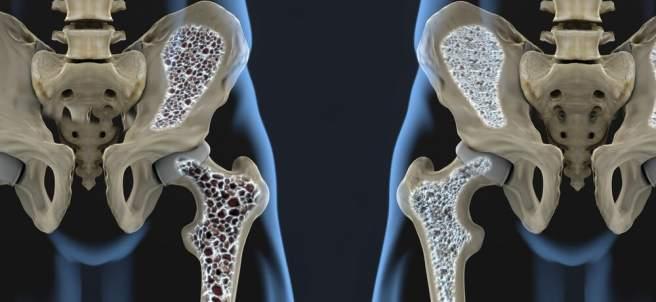Osteoporosis, lo que debes saber