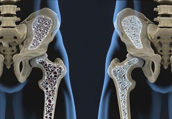 Enfermedades óseas en ancianos: ¿cuáles son las más comunes?