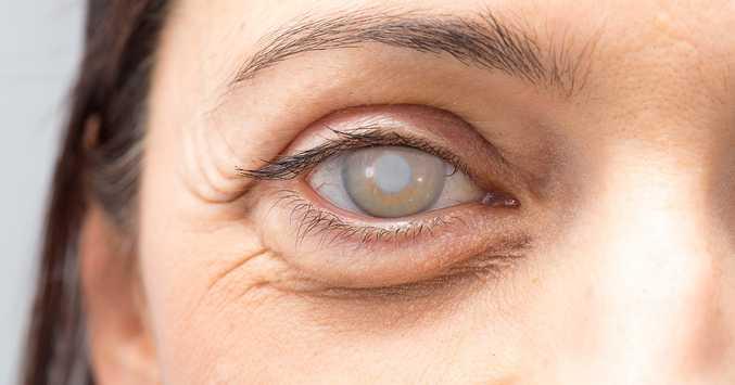 problemas de vision cataratas